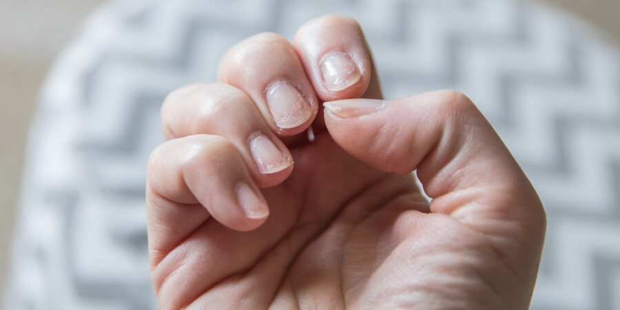 Exfolierea unghiilor și semnalele transmise de organism. Care sunt principalele cauze?